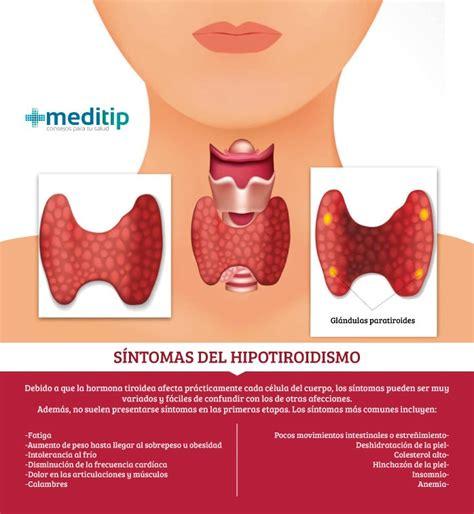 El tratamiento del hipotiroidismo y sus deficiencias   Meditip