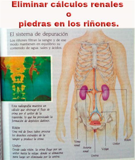 Eliminar cálculos renales o piedras en los riñones ...