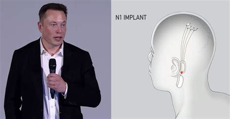 Elon Musk has tested his AI brain implant chip on monkeys ...