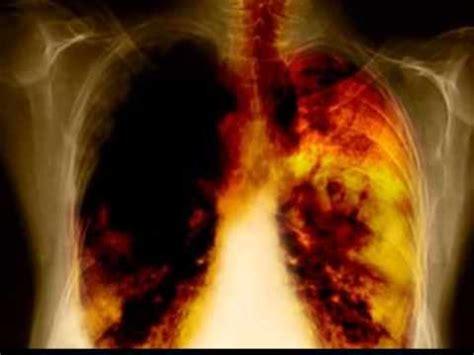 Encuentran el gen que provoca cáncer de pulmón en personas ...