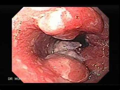 Endoscopia de Cáncer de Esófago de Barrett   YouTube