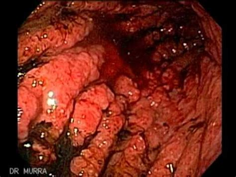 Endoscopia de Linitis Plastica Cáncer de Estómago   YouTube