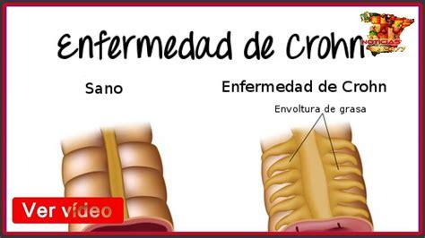 Enfermedad de Crohn: síntomas y tratamiento   YouTube