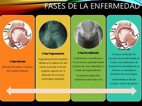 ENFERMEDAD DE PERTHES PDF