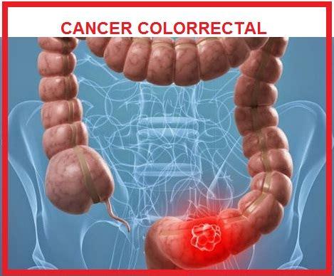 ENFERMEDADES INTESTINALES: CANCER COLORRECTAL, CAUSAS Y ...