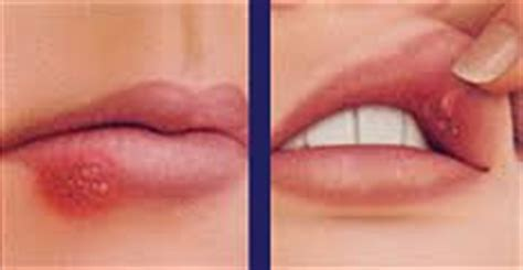 ENFERMEDADES TRANSMISIBLES: HERPES LABIAL