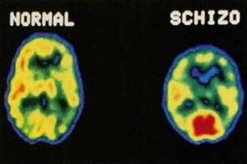 Enfermos Excluidos: Introducción a la Esquizofrenia