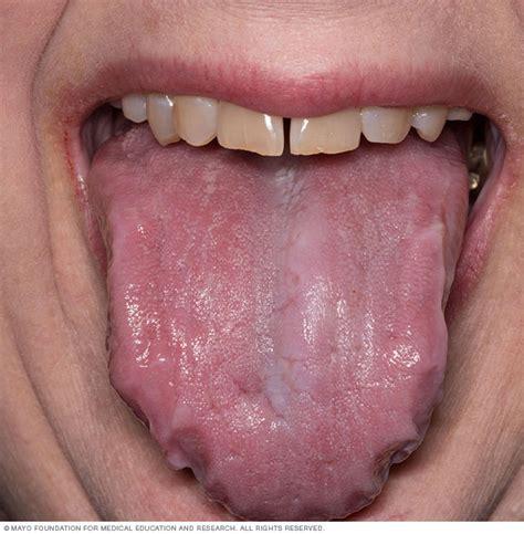 Enlarged tongue   Mayo Clinic