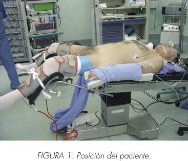 ¿Es la cistectomía radical laparoscópica el nuevo standard ...