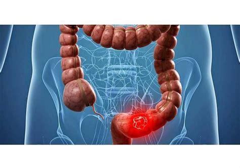 Esperanzador avance: mejoran el tratamiento del cáncer ...