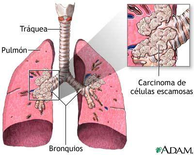 Estadiaje del cáncer de pulmón: novedades. – Servicio de ...