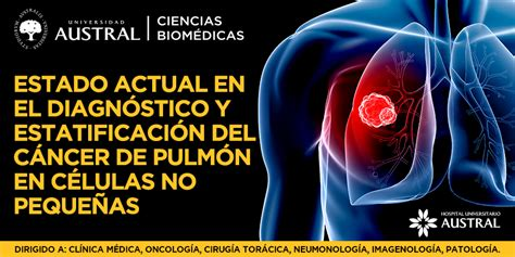 Estado Actual en el Diagnóstico y Estadificación del ...