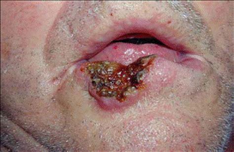 Exordios Clínicos: Casos Clínicos: Lesiones cutáneas ...