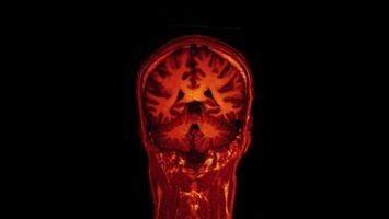 expectativa de vida cáncer páncreas   Salud   amhasefer.com