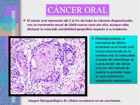 Exposicion patologia iii unidad cancer oral 1