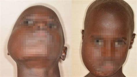 Extirpan un tumor benigno de la cara de un niño que comía ...