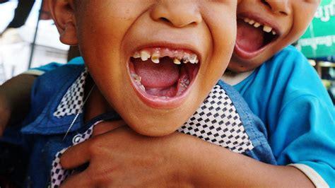 Extraen más de 500 dientes a un niño indio de 7 años ...