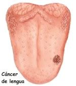 Factores de riesgo para cáncer de lengua, Como aparece el ...