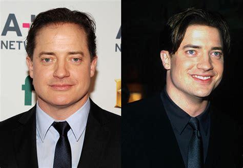 Famosos antes y después: fotos de la transformación de los ...