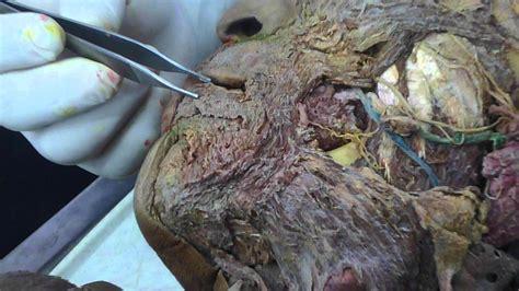 FAMURP ANATOMIA CABEZA m.depresor del labio inferior   YouTube