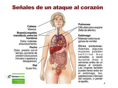 FARMACIA ¿Cuáles son los síntomas de un ataque cardiaco ...