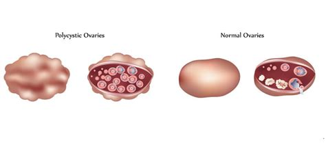 Female Infertility   Causes, Symptoms, Treatments