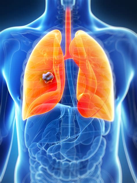 Fighting lung cancer with personalised medicine  Day 93 ...