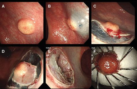 Figure 1 from Endoscopic submucosal dissection for rectal ...