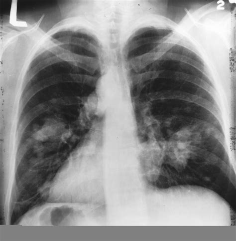 File:X ray Chest Cancer.jpg