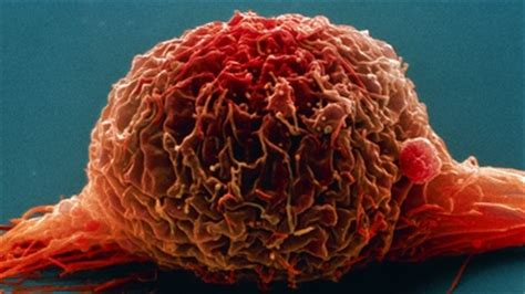 First bladder cancer guideline to reduce variations in ...