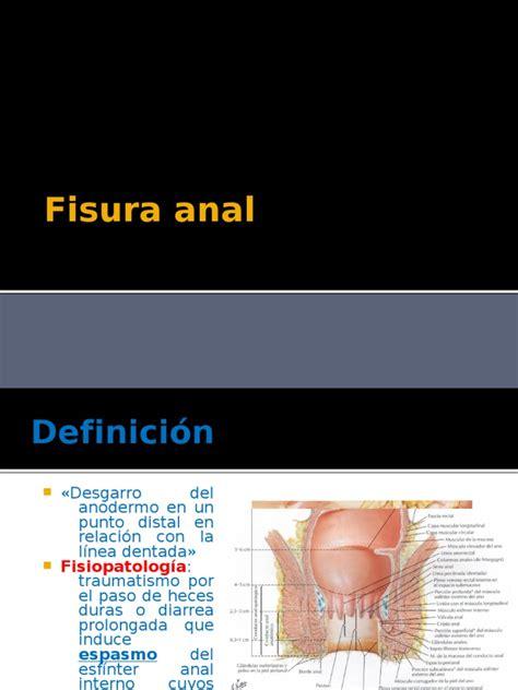 fisura y fístula   Hemorroides   Gastroenterología