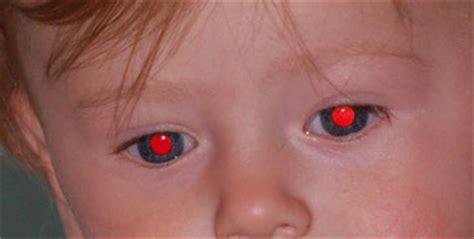 Fix Red Eyes: Eliminar ojos rojos de fotografias en forma ...