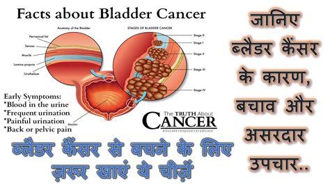 foods to prevent bladder cancer || bladder cancer ...