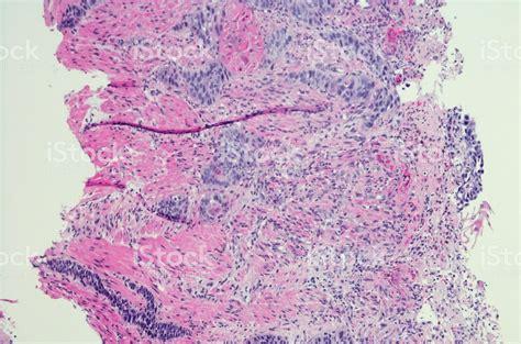 Foto de Carcinoma De Células Escamosas Do Esôfago H E ...