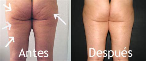 Fotos celulitis: El antes y el después