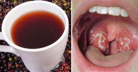 Frena una infección de garganta en solo 24 horas con 1 ...
