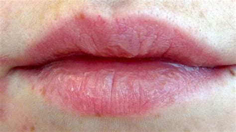 Frustrated Of Chapped Lips Make Your Own Herbal Lip Balm!