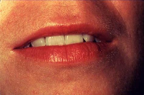 Fundacja z uśmiechem   Detecting oral cancer   the exam review