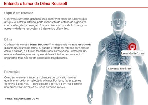G1 > Política   NOTÍCIAS   Ministra Dilma faz tratamento ...