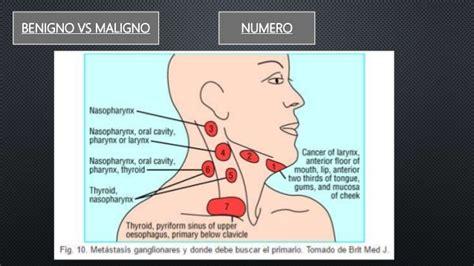 Ganglios cuello y torax