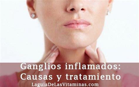 Ganglios inflamados: causas y tratamiento | La Guía de las ...