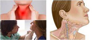 Ganglios Inflamados en el Cuello: Características, Causas ...