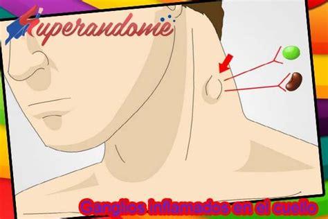 Ganglios Inflamados En El Cuello – Síntomas – Causas ...
