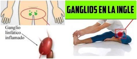 Ganglios Inflamados en la Ingle: Anatomía, Causas de la ...