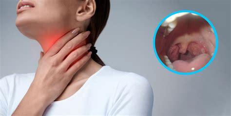 Ganglios linfáticos inflamados: ¿en qué momento ...