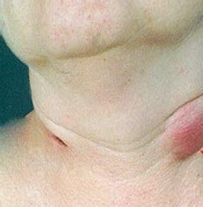Ganglios linfaticos inflamados remedios caseros – Salud y ...