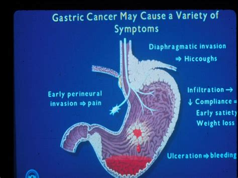 Gastric Cancer   Cancer Therapy Advisor