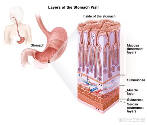 Gastric Cancer Treatment  PDQ –Patient Version   National ...