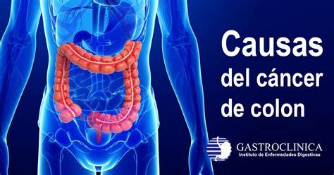 GASTROCLINICA | Causas del cáncer de colon