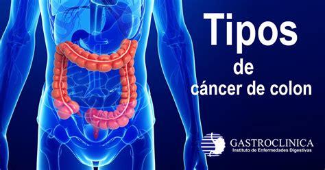 GASTROCLINICA   Tipos de cáncer en el colon y el recto